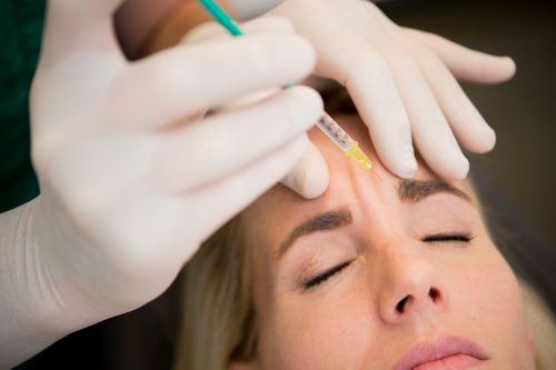 Botox spritzen Zornesfalte
